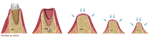 single-tooth-bone-loss2